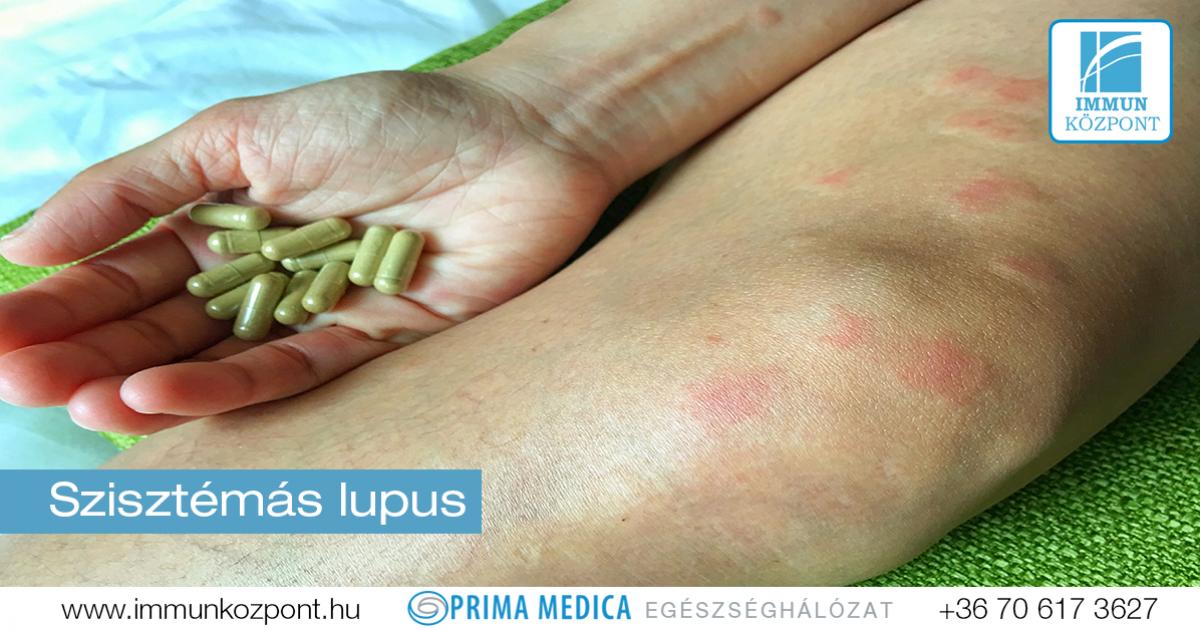 SLE - szisztémás lupus erythematosus