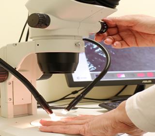Kapillármikroszkópia
