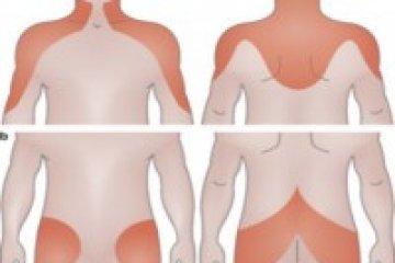 Gyakori gyulladásos betegség növeli a szívinfarktus és a stroke kockázatát
