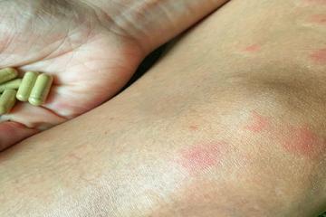 SLE - Szisztémás lupus