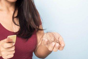 Autoimmun betegséget jelezhet, ha foltokban hullik a haja