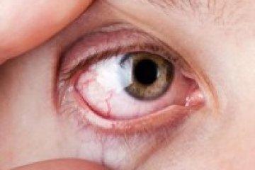 Szem- és légúti fertőzésekre is hajlamosít a Sjögren-szindróma