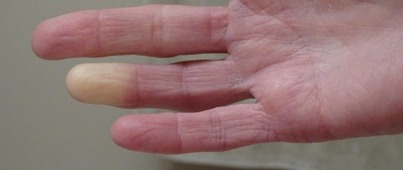 5 dolog, amiről felismerheti a Raynaud-szindrómás beteget!