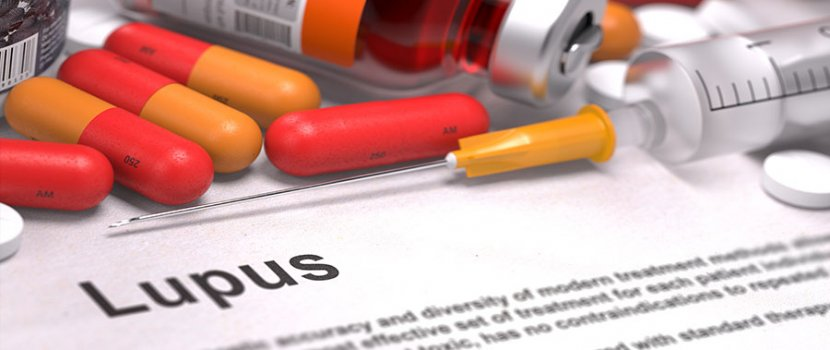 A lupus tünetei – 5 gyakori panasz