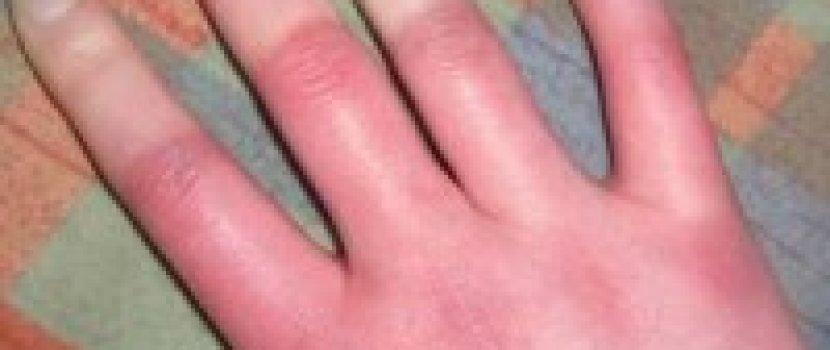 ízületi gyulladások az ujjakon