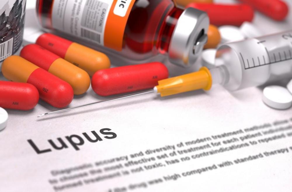 Gyakori autoimmun betegség a lupusz.