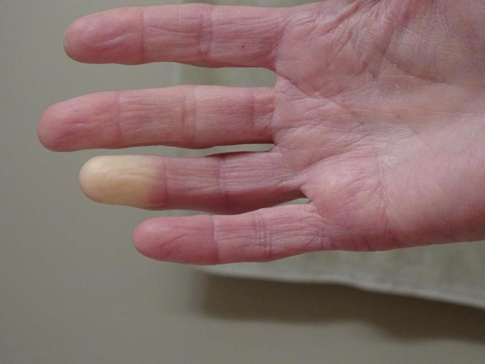 raynaud-szindróma fogyás után