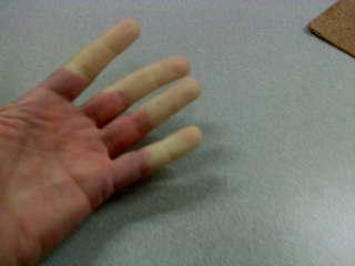 Forróságérzés az ujjakban - EgészségKalauz