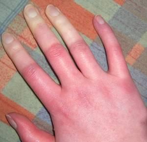raynaud szindróma